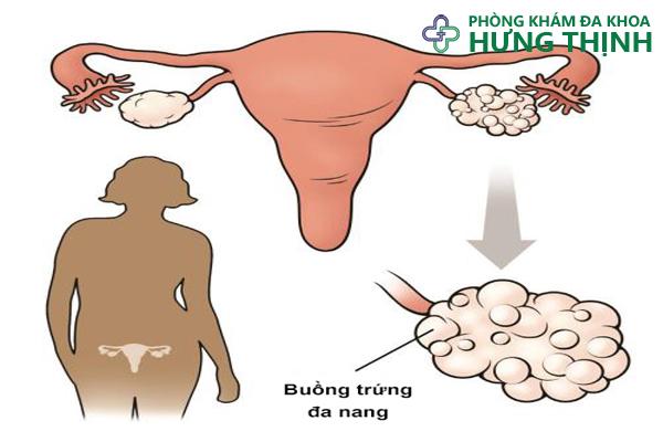 buong-trung-da-nang