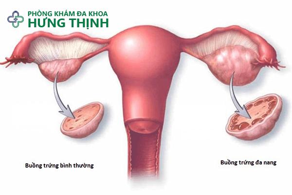 Hội chứng đa nang buồng trứng?