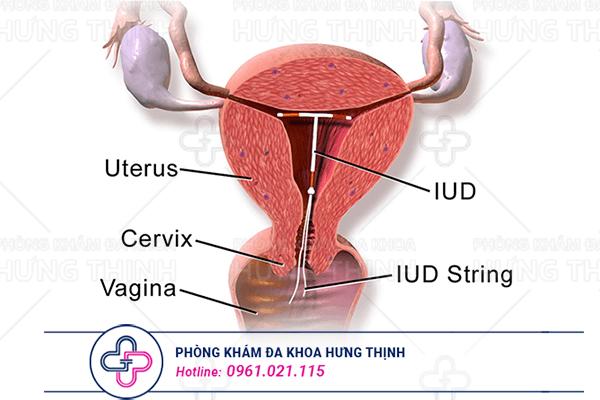 Nhược điểm và các tác dụng phụ của vòng tránh thai