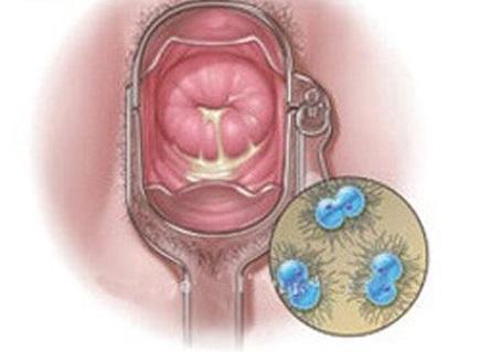 Triệu chứng bệnh lậu ở nữ giới