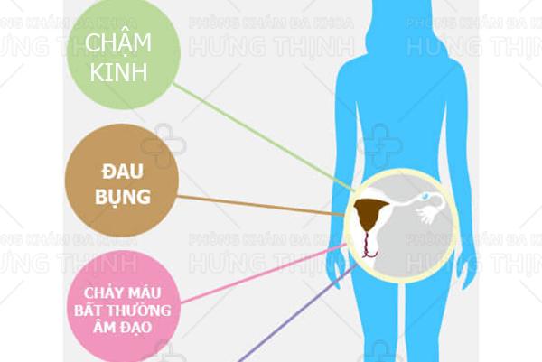 Những dấu hiệu nhận biết mang thai ngoài tử cung